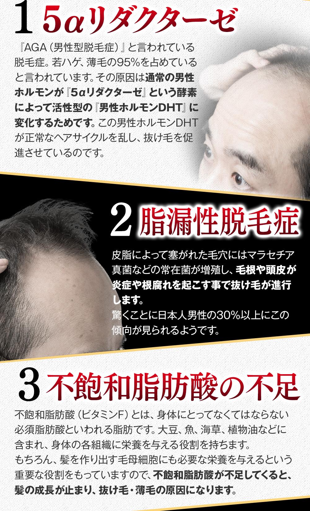 5αリダクターゼ 脂漏性脱毛症 不飽和脂肪酸の不足