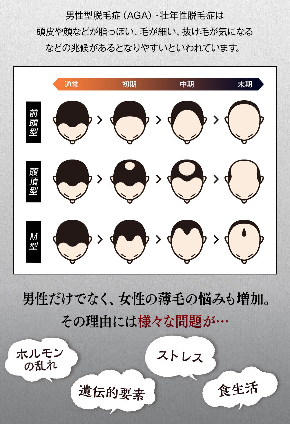 男性型脱毛症(AGA) 壮年性脱毛症